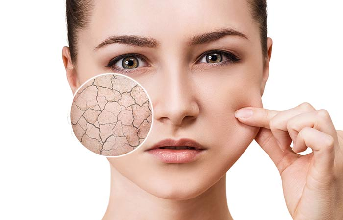 Symptoms of Dehydrated Skin and Its Ultimate Solution – Docven ...