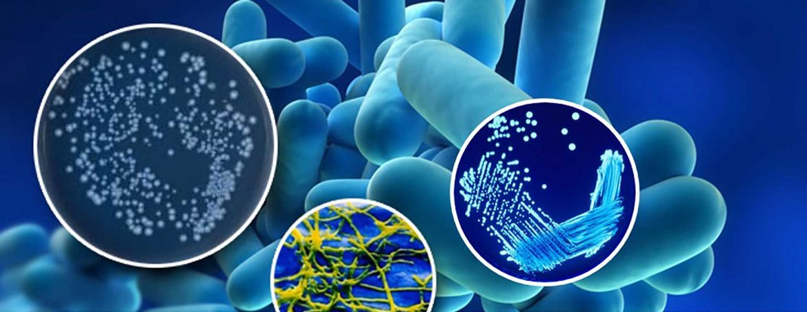 How To Reduce The Risk Relating To Legionella Risk Assessment