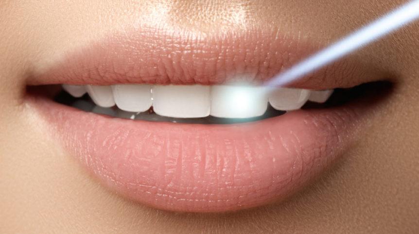 Perfect Teeth Whitening Dentist